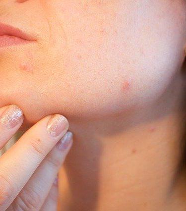 traitement laser acne